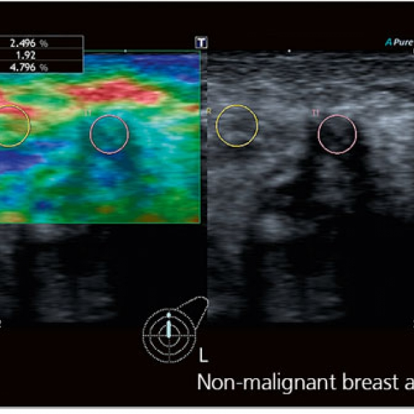 Aplio 300 Realtime elastography Technology